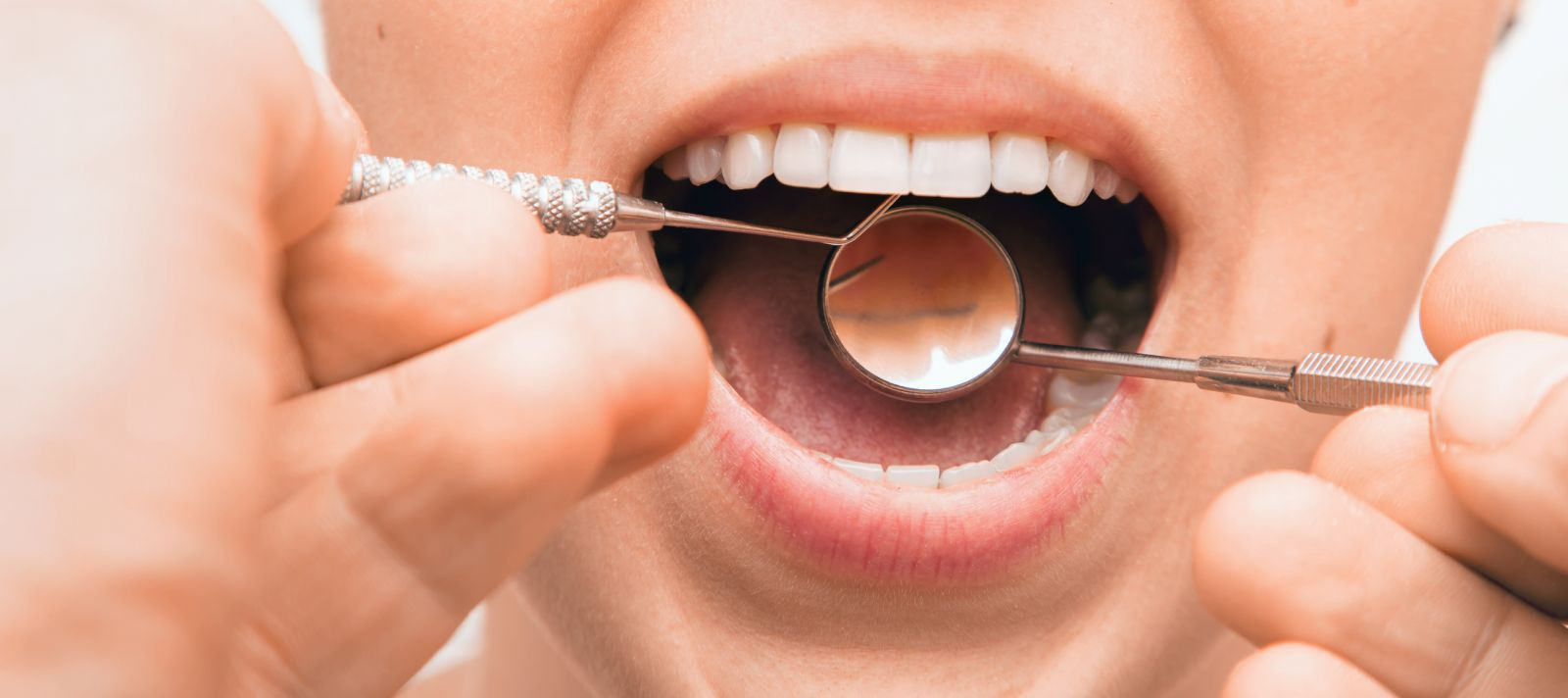 The Influence Of Oral Health On Your Overall Health