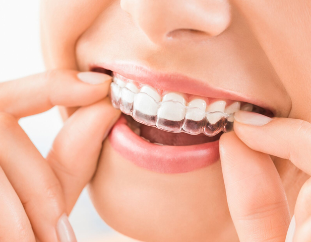 What Are Invisalign And Clear Aligners