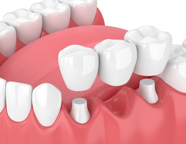 Why Would A Dental Bridge Be Needed