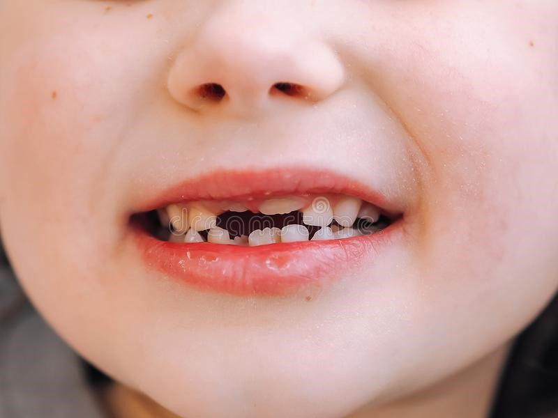 How To Care For Children's Milk Teeth